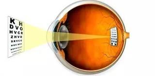 How are myopia and hyperopia related to the lens focusing on the retina