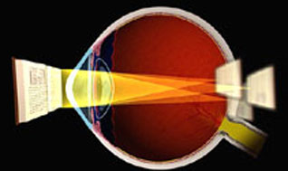 What is myopia with astigmatism?