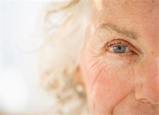 Can myopia cause cataracts?