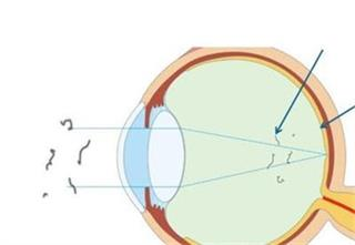 Why does myopia cause floaters?