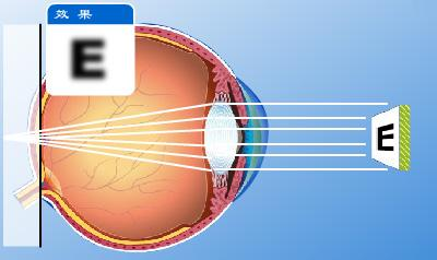 How myopia and hyperopia are different?